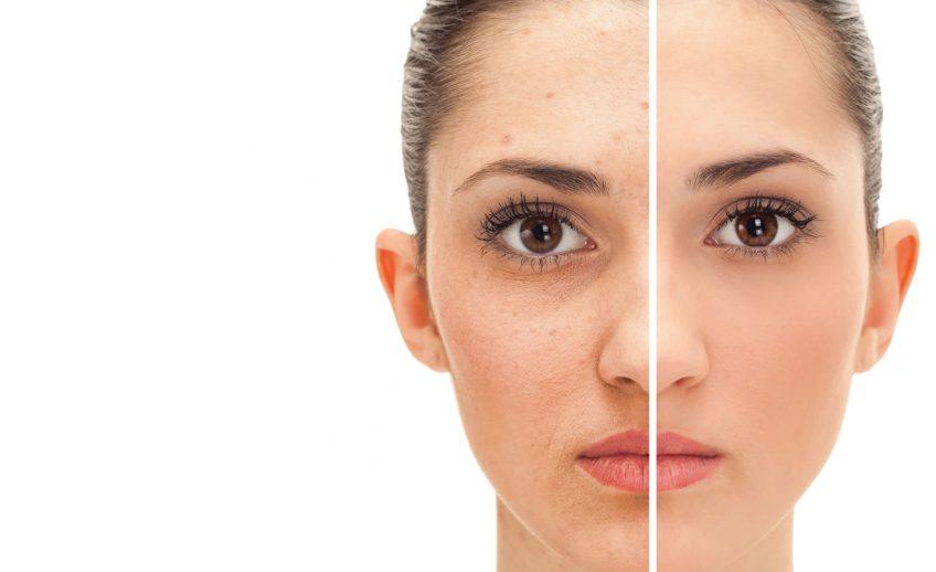 Radiant Skin Clinic Jaipur