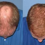 Hair Transplantaion FAQ's