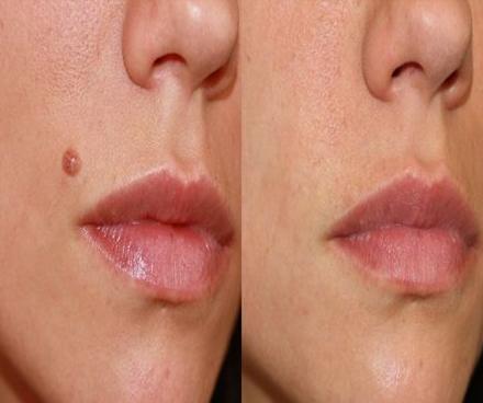 Mole removal FAQ