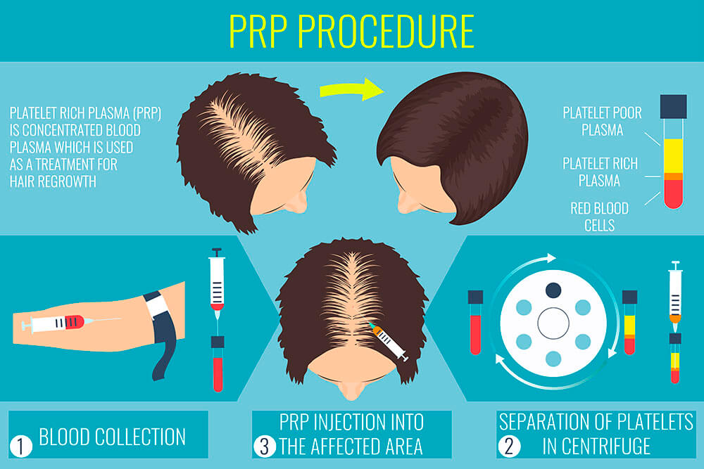 PRP hair treatment Practo
