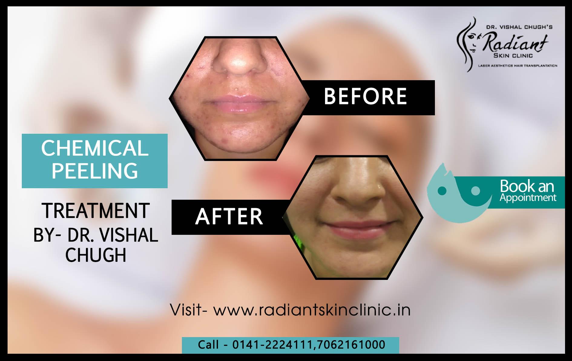 Chemical peeling in jaipur
