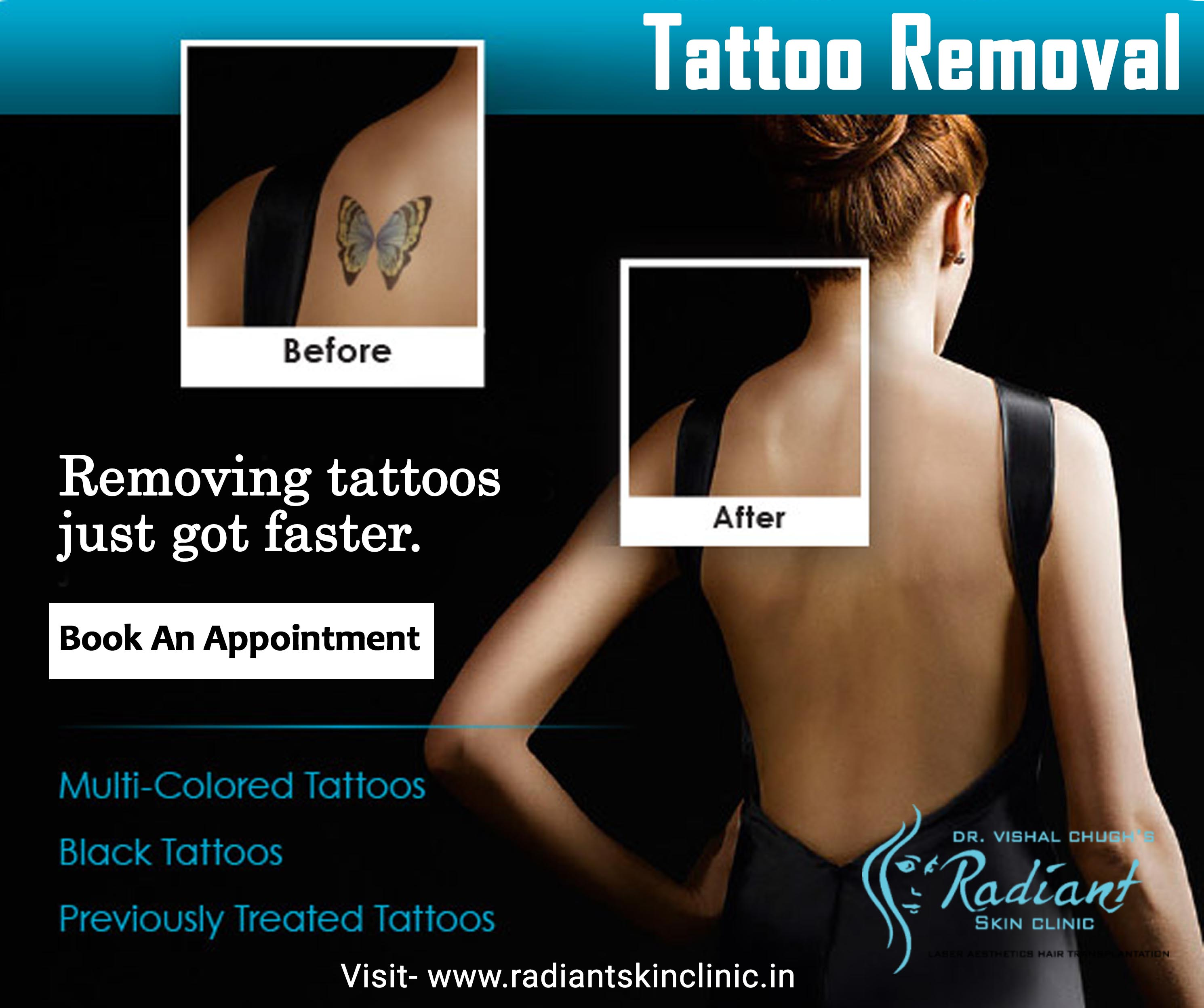tattoo removal in jaipur