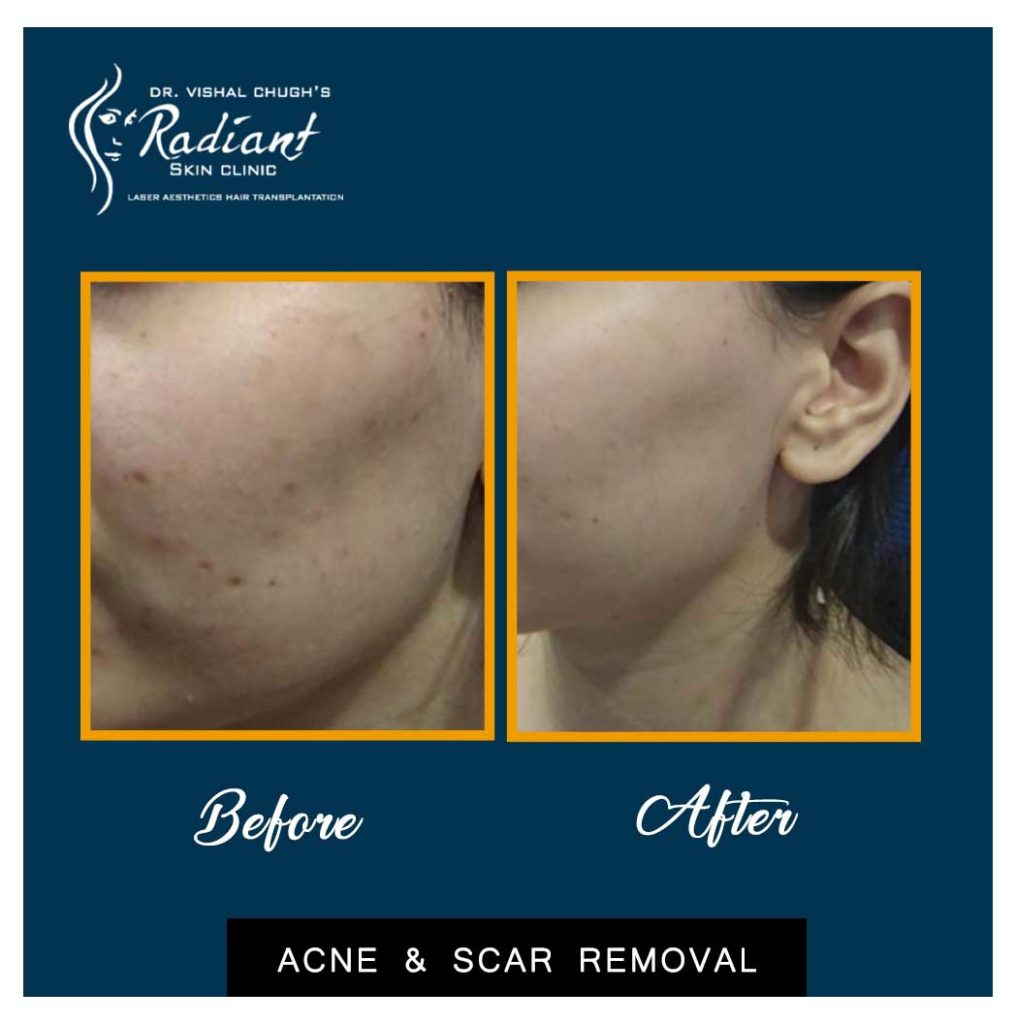 acne removal treatment