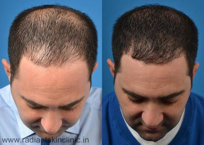 Hair Transplant In India Jaipur Archives Radiant Skin Clinic