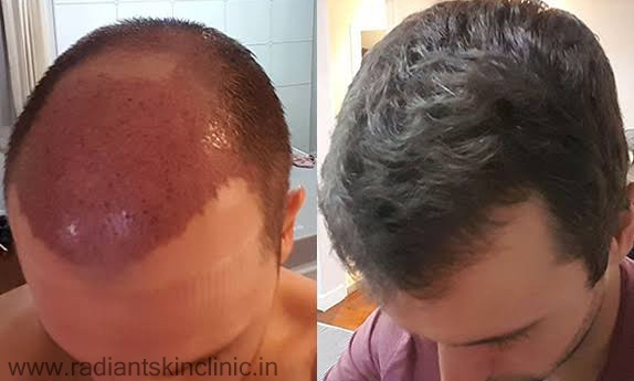 Hair Transplant In Jaipur Archives Radiant Skin Clinic Laser
