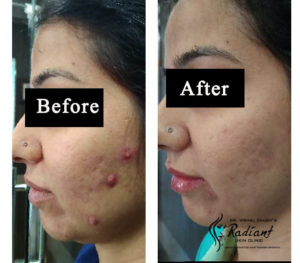 Laser Treatment for acne scar removal in jaipur