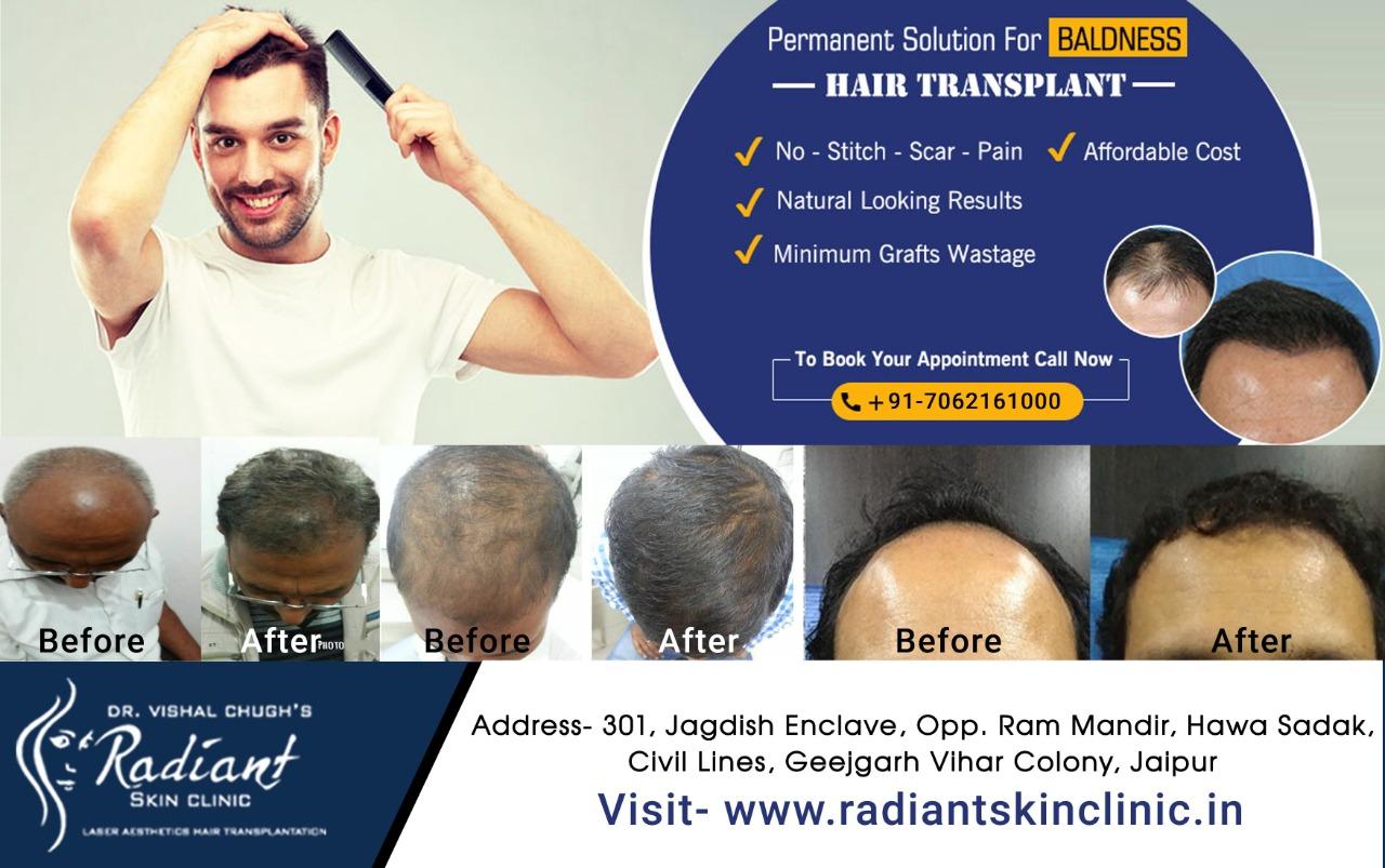 top hair transplant clinic in jaipur