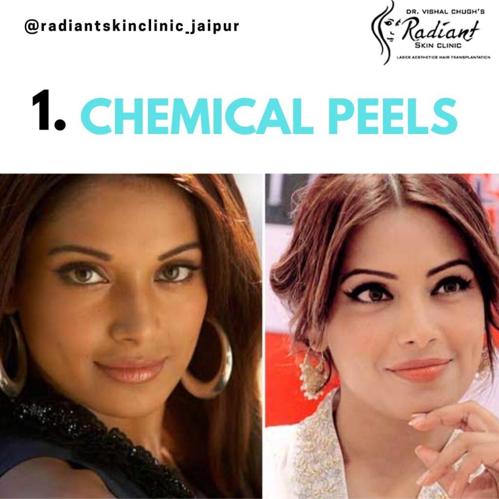 Chemical peeling treatment in jaipur