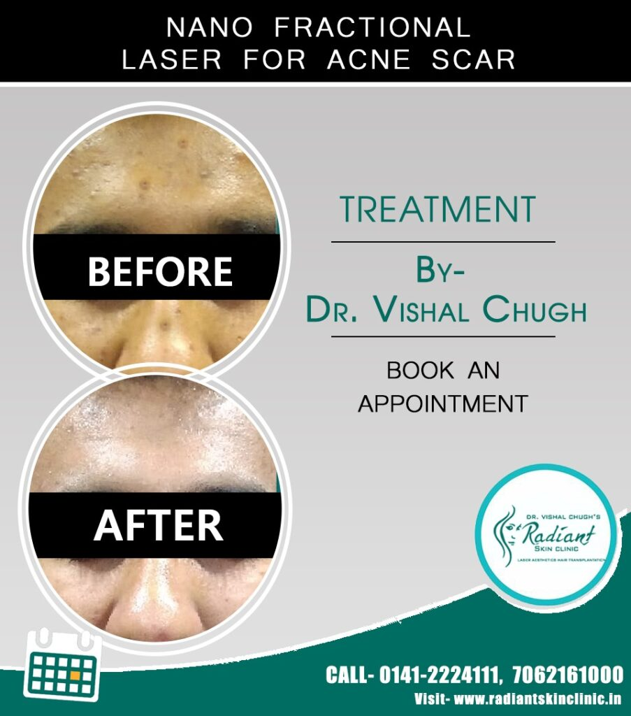 acne treatment in jaipur