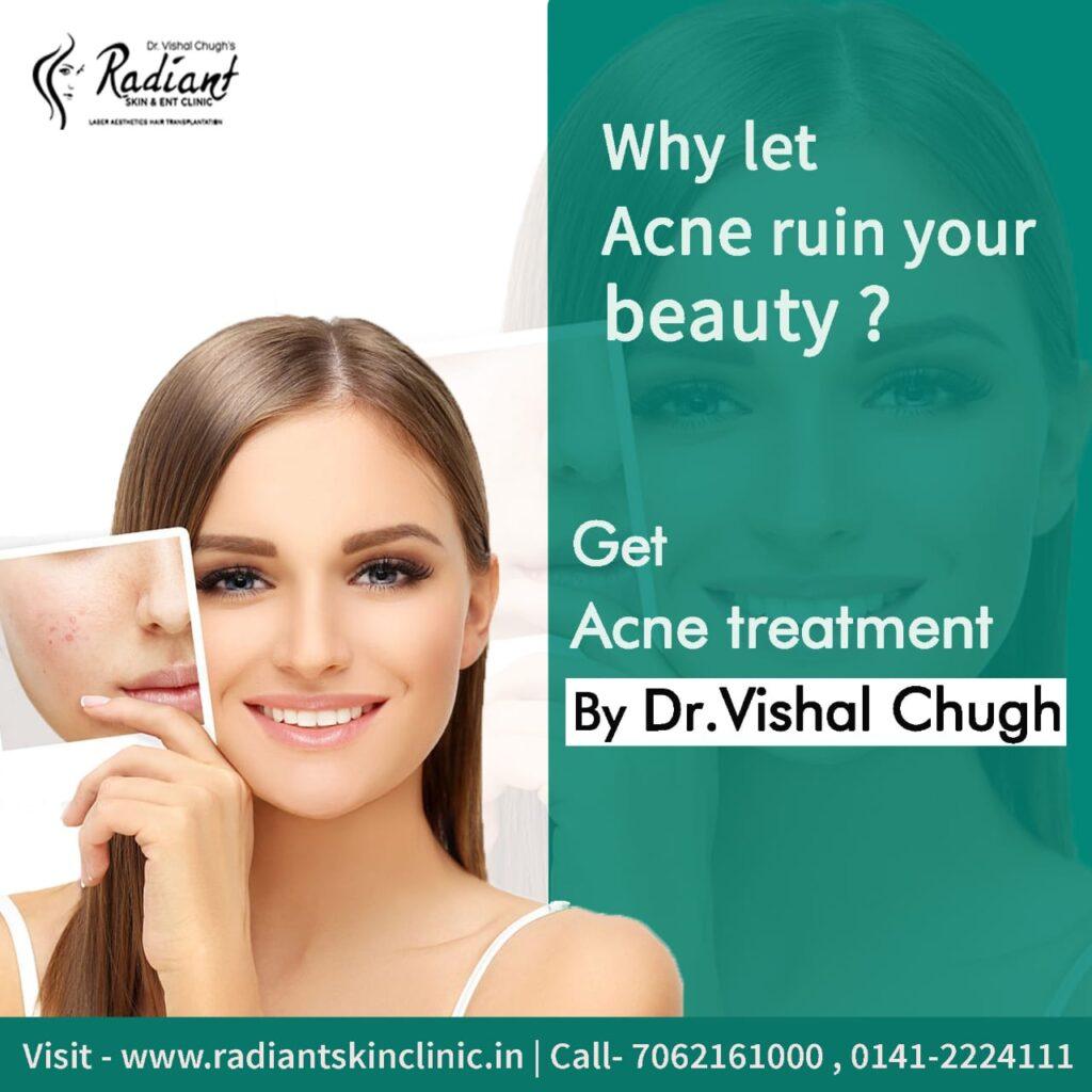 acne doctor in jaipur